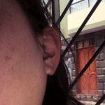 海外, ペルー, 病気, 耳下腺炎